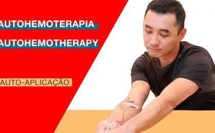 Autohemoterapia